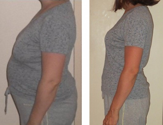 Bronwyn: The Supermom who Dropped 40 Pounds