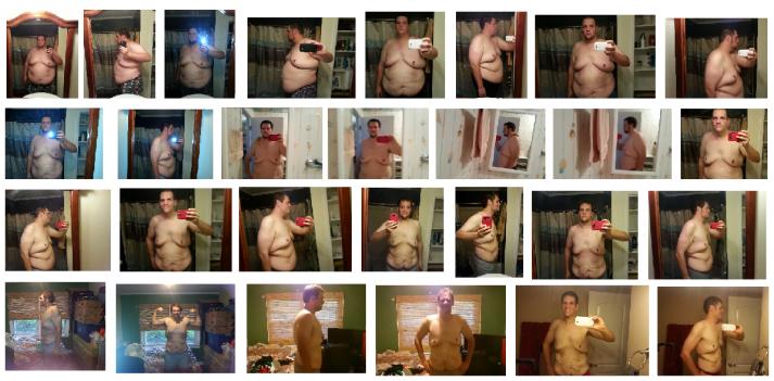 Anthony progression